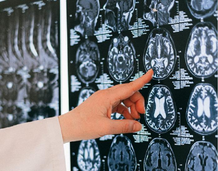 fmri-brain-scans
